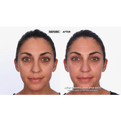 retinol for skin