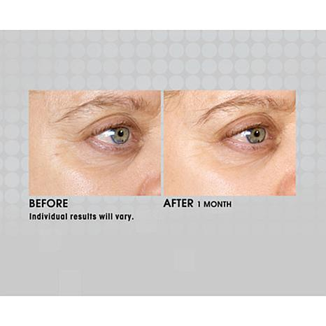 Silk'n FaceFX Anti-Aging Device with Serum