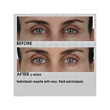 91fab0f102c ... Elizabeth Arden PREVAGE® Eye Serum ...